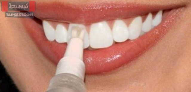 طرق تبييض الاسنان والمخاطر الناتجة عن التبييض