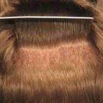 زراعة الشعر كيف تتم كم تكلفتها وماهى التقنيات اللازمة