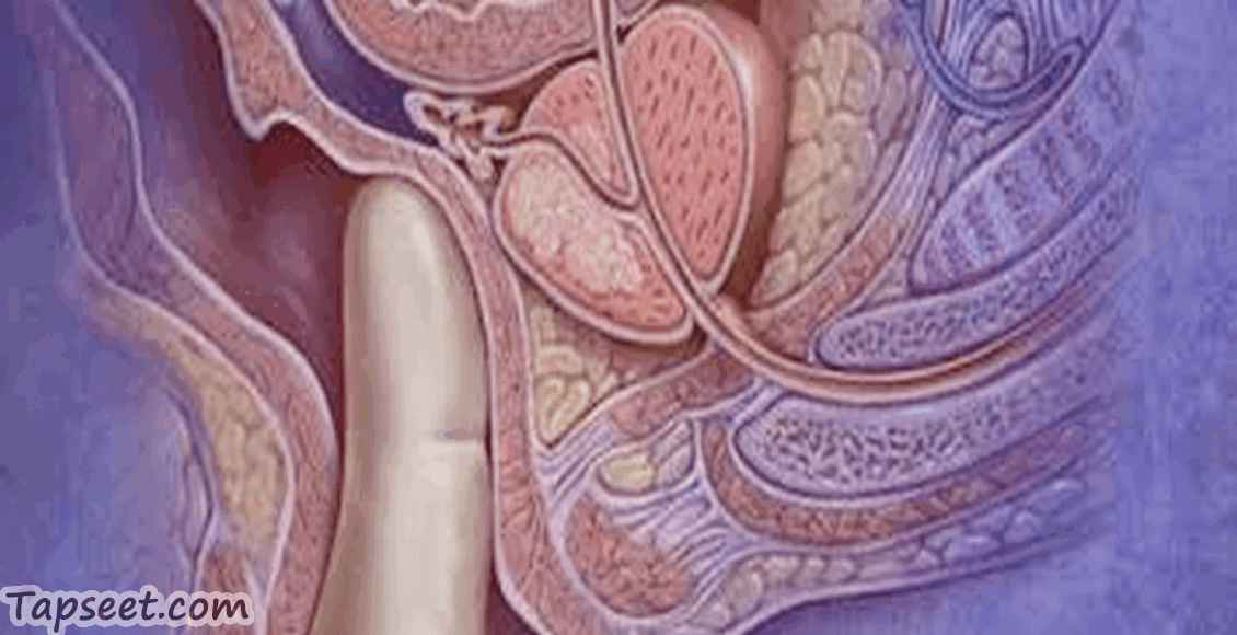 التهاب البروستاتا الاعراض والاسباب وطرق العلاج