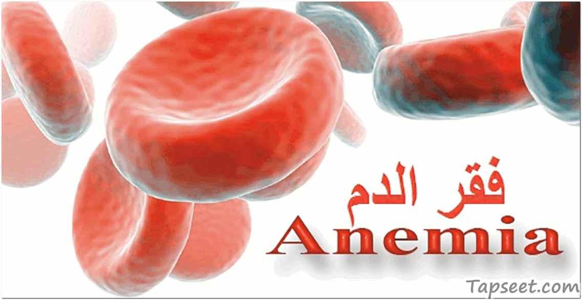 علاج فقر الدم من خلال الغذاء